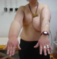 Iatrogenic arm lymphedema