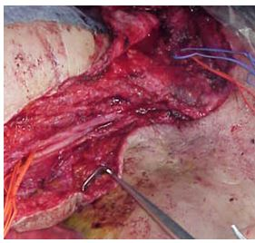 ALNT surgical technique: complete dissection of the nerves and axillar vein , and thoracodorsal vessels