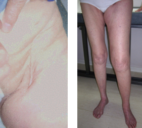 Iatrogenic leg lyphedema