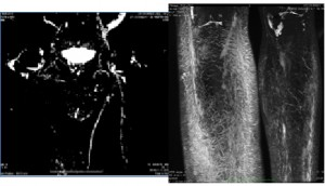 Lymphatic MRI, also called Magnetic Resonance Lymphography or MRL, is the most accurate diagnostic tool for lymphedema.