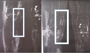 Lympho MRI showing the transplant at the knee