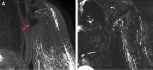 Crecimiento de nuevos vasos linfáticos es visible en la MRI un año después del trasplante de ganglios en la zona axilar